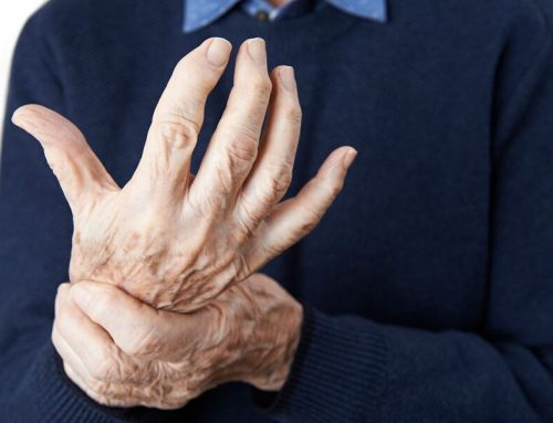 Senior Health: Tips to Help the Elderly Cope with Arthritis