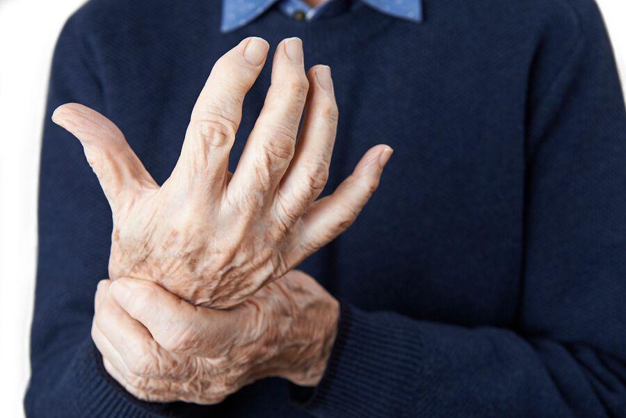 Home Health Care in Camp Hill AL: Senior Health: Arthritis
